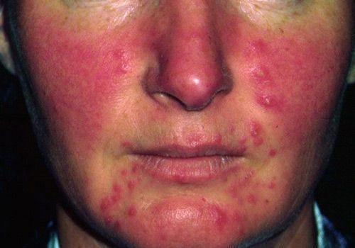 Resultado de imagen para rosacea es contagiosa